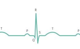 Normaal ECG met de P-top, QRS-complex en T-top