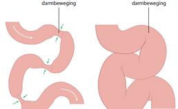 Gezonde darm en ileus (darmafsluiting)