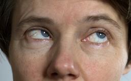 Dystonie van de oogspieren: oculogyre crisis