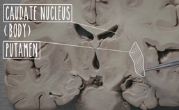 Videomateriaal basale ganglia