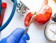 Het gebruik van antidepressiva na een bariatrische operatie
