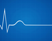 Monitoring ECG tijdens gebruik antidepressiva