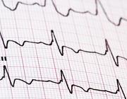 Risico op verlengd QTc-interval bij methadon